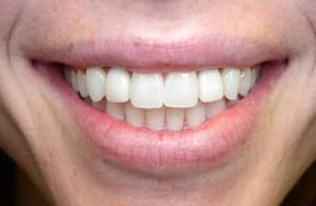 Close-up after dental implants photo of lips and teeth of a woman smiling with missing left and right lateral incisors; for information on dental implants from Cheek Dental in East Cobb.