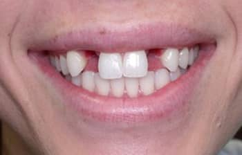 Close-up before dental implants photo of lips and teeth of a woman smiling with missing left and right lateral incisors; for information on dental implants from Cheek Dental in East Cobb.