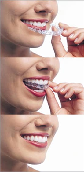 Three vertical nose-to-neck photos of a woman smiling and wearing red lipstick. In photo 1, she is holding aligners near her mouth. In photo 2, she is putting Invisalign aligners on her upper teeth. In photo 3, she is smiling and the aligners are on.