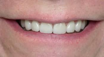 After porcelain veneers photo of a patient's lips and smile. The teeth are square, short, and have spaces between them; for information on porcelain veneers from Cheek Dental in East Cobb.