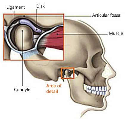 Diagram of the TMJ joint showing the mandibular condyle resting in the articular fossa of the skull, with the disk and the ligament in between and attached to the muscle; for information on dentists in East Cobb treating TMJ disorder.
