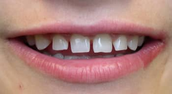 Close-up lips and teeth before-dental-bonding photo of teeth that are uneven, square, and have spaces between them; from the office of East Cobb cosmetic dentist Dr. Cristi Cheek.