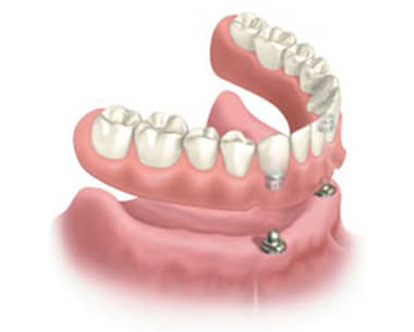 Diagram of a lower arch of dentures with snaps in the base hovering above and lower jawbone and gums. The front of bone has two dental implants in it; for information on affordable dental implants in East Cobb.