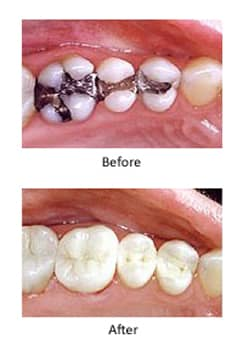 Vertical mercury-free-dentistry before-and-after photos. The upper photo shows three lower amalgam-filled teeth and the lower photo shows teeth filled with composite.
