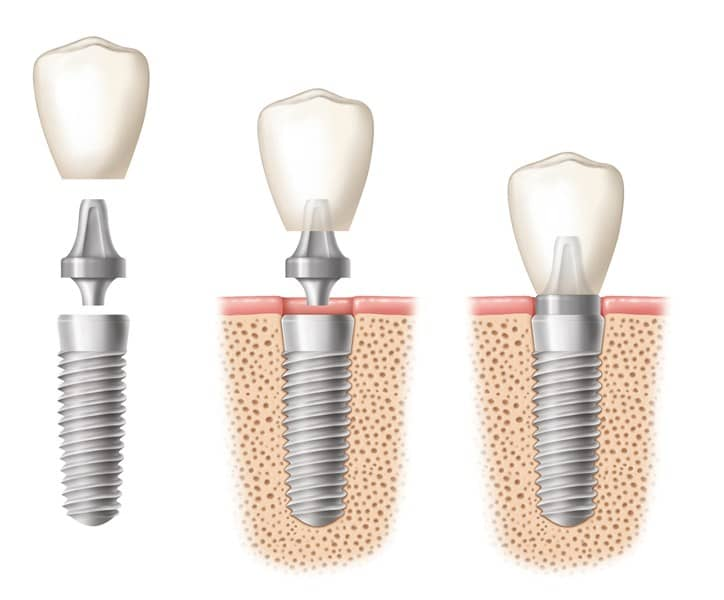 An image of a dental implant crown being placed in three stages
