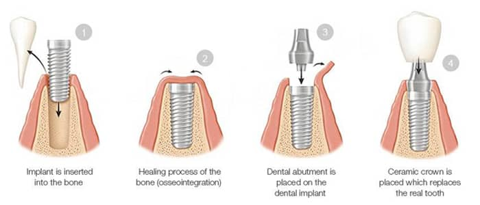 Four-phase diagram of the dental implant process, including insertion in bone, healing process, abutment placement, and ceramic crown attachment; from Cheek Dental in East Cobb, Marietta, GA.