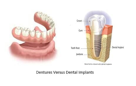 dentures side by side with a dental implant