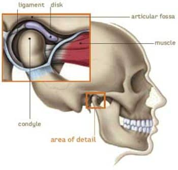 An illustration with a close up of a TMJ Joint