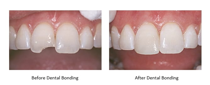 before and after images of dental bonding for chipped teeth