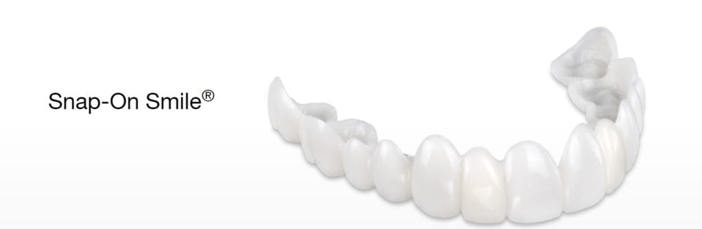 image of a snap on smile