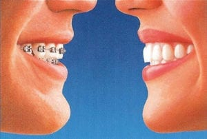 a side by side comparison of traditional braces and Invisalign on someone's teeth