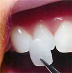A single porcelain Veneer being placed on a tooth