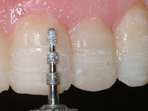 photo of tooth preparation for porcelain veneers